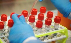 Биолог объяснила ошибки в тестах на коронавирус
