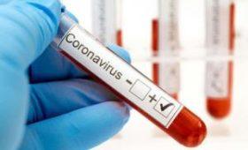 Частные лаборатории и клиники с начала эпидемии COVID-19 провели 3900 ПЦР-тестов, выявили 198 случаев заболевания – Степанов