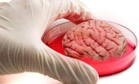 В мини-мозгах обнаружили незрелые клетки в стрессе