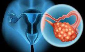 Найдены 6 типов клеток, вызывающих рак яичников